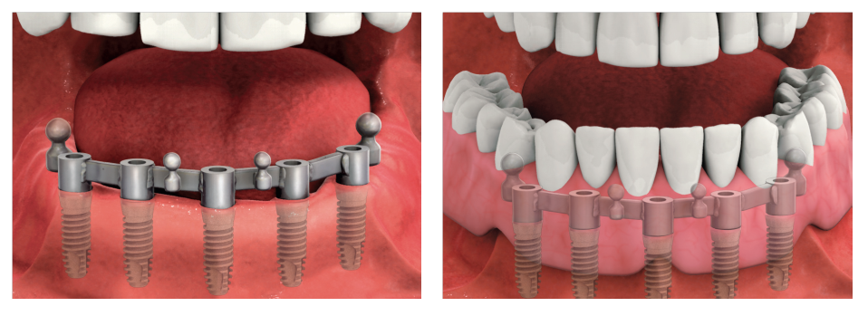 Implant-Supported Dentures 1
