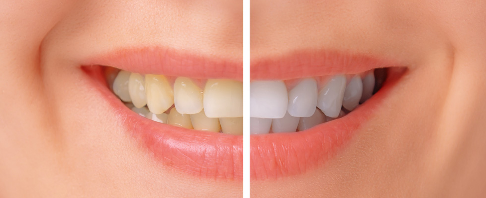 Teeth Whitening 1