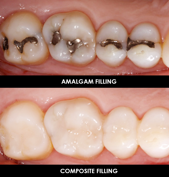 Composite Fillings 1